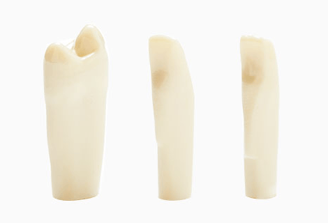 Simulation teeth